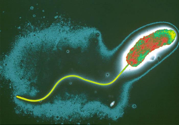 Nanosensor é desenvolvido para detecção de toxina relacionada com a cólera