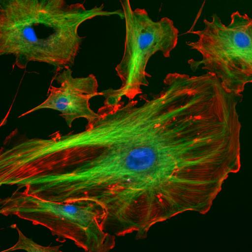 Análise e processamento de imagens em microscopia de fluorescência
